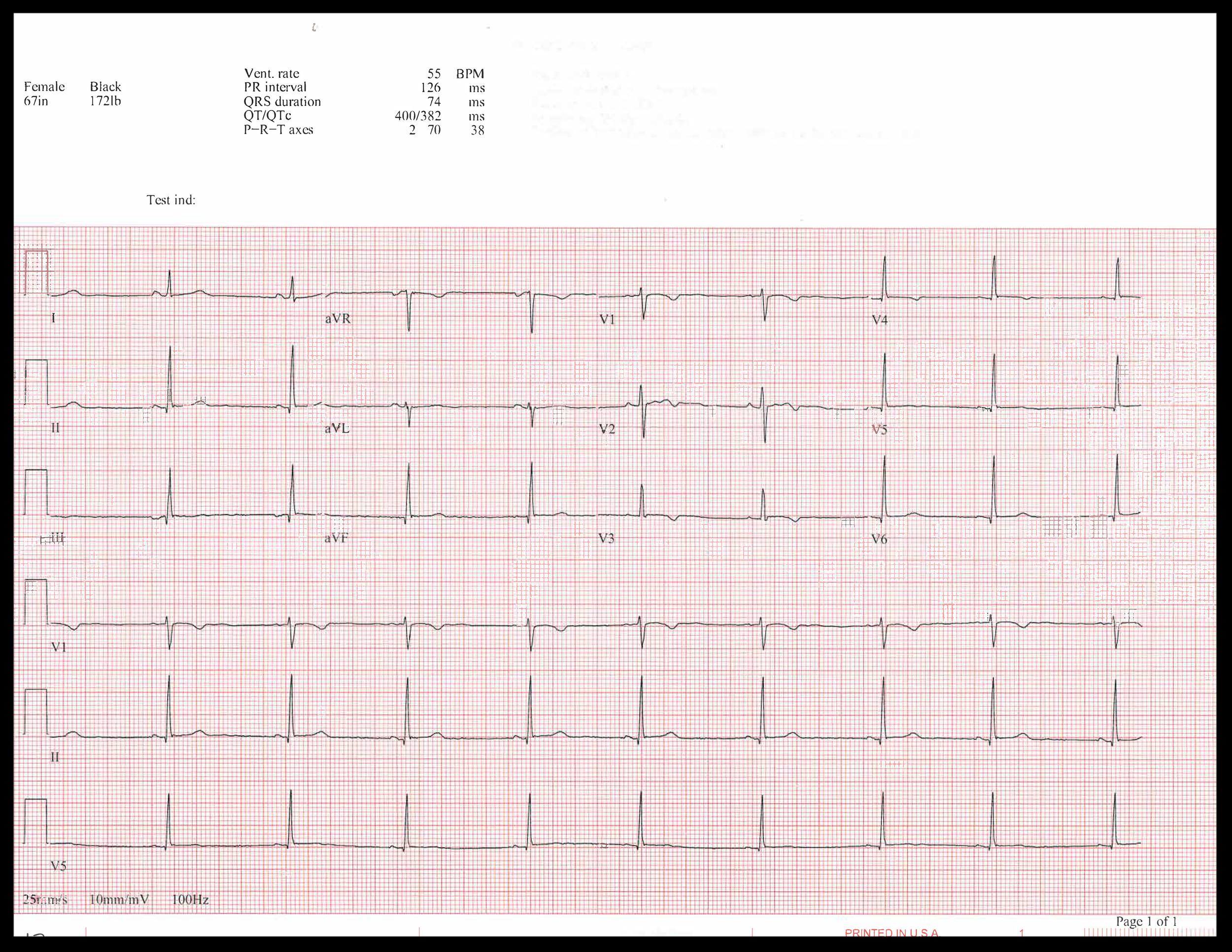 EKG of the week_Page_5.png