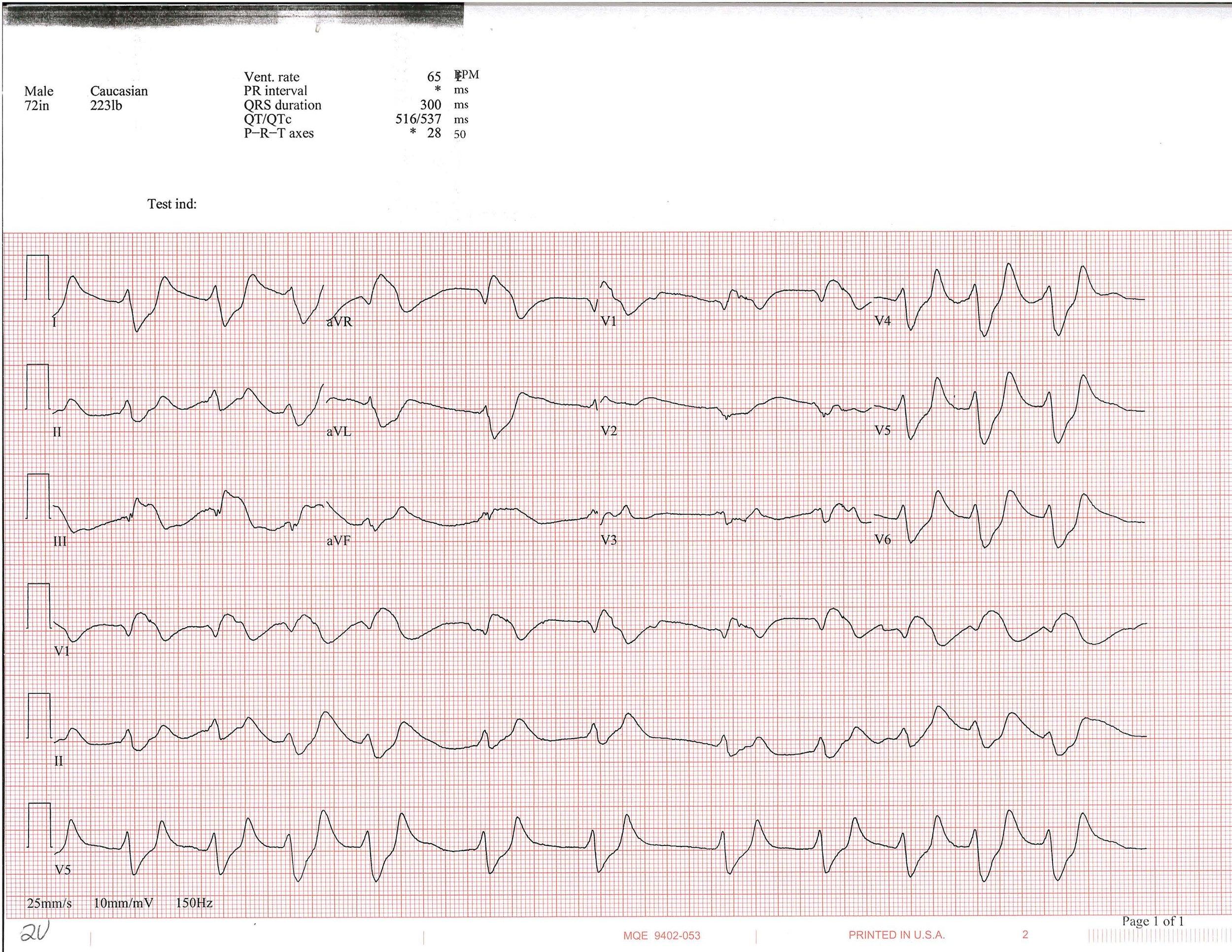 EKG of the week 4_Page_1.jpg