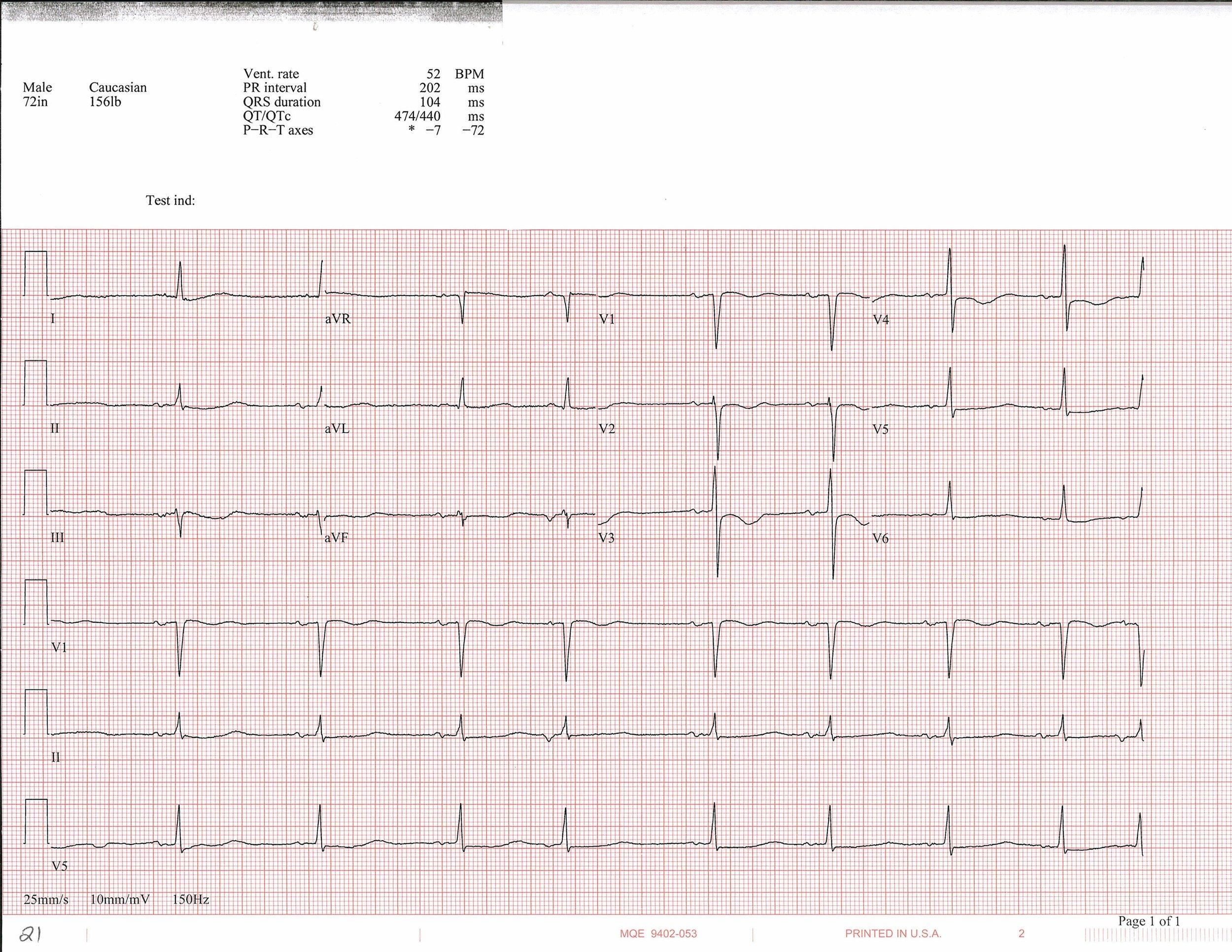 EKG of the week 4_Page_2.jpg