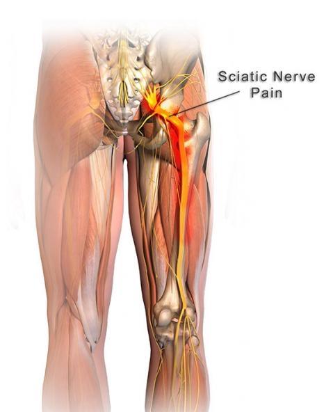 sciatic-nerve-pain.jpg
