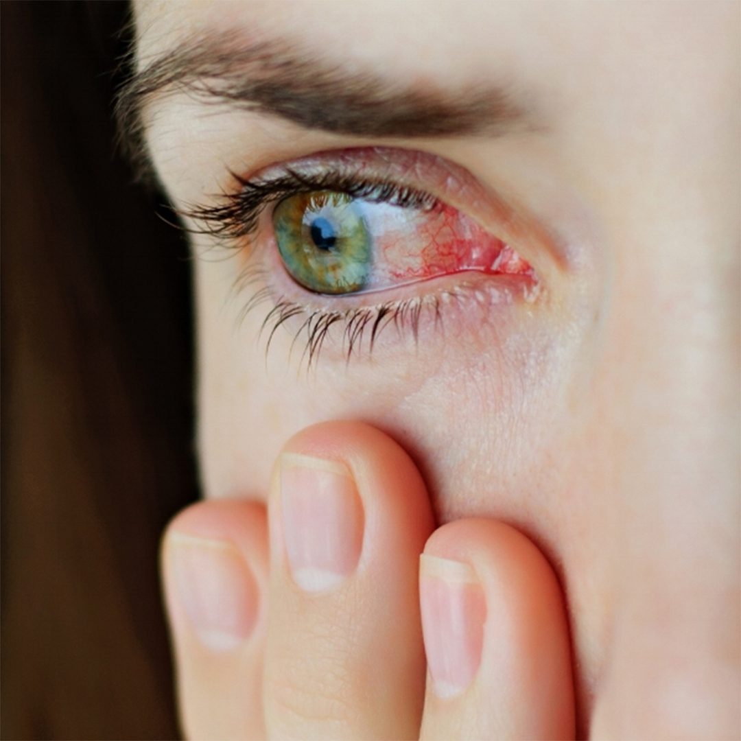 """""""Pink eye"""" explained and the different types of conjunctivitis."""