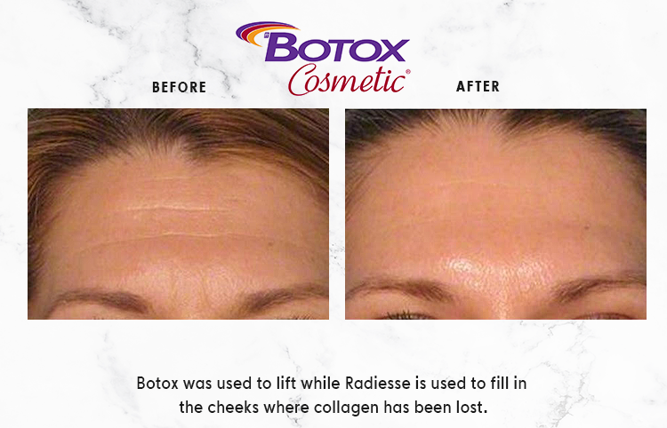 BOTOX-COSMETIC-IMAGE_1-1.png