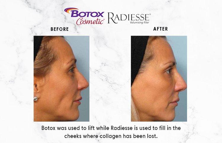 BOTOX-COSMETIC-IMAGE_1-2.png