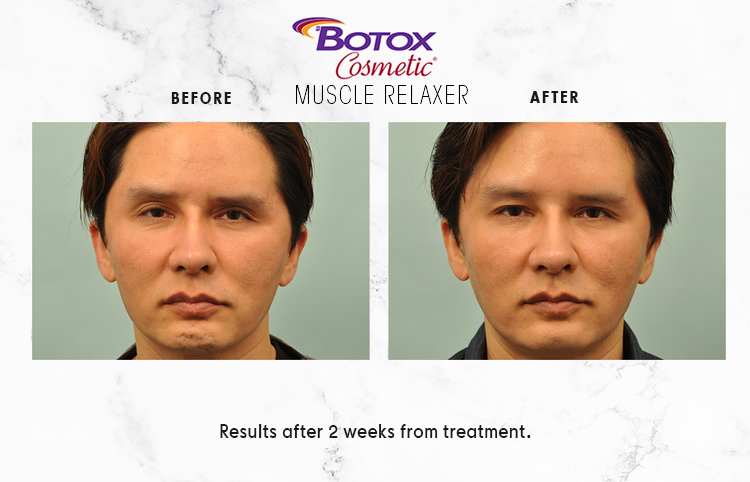 BOTOX-COSMETIC-IMAGE_1-3.png