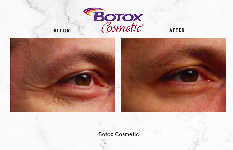 BOTOX-COSMETIC-IMAGE_1-4.png