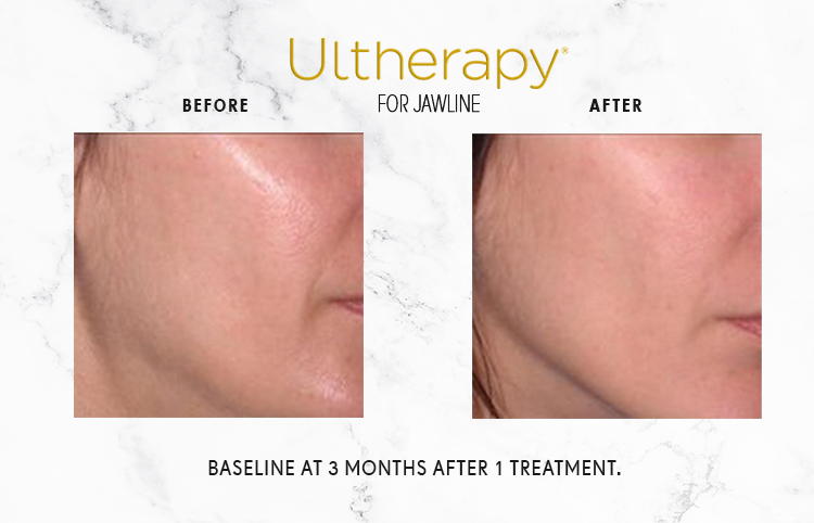 ULTHERAPY_IMAGE_1-2.png