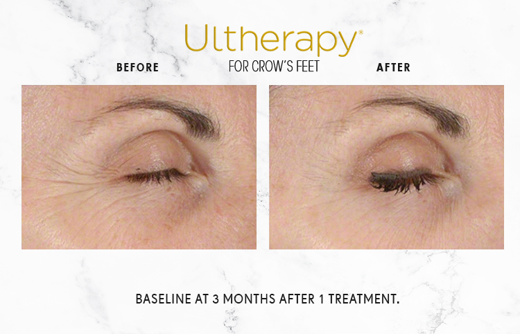 ULTHERAPY_IMAGE_1-1.png