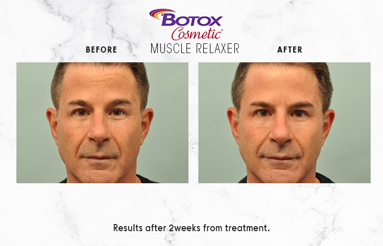 BOTOX-COSMETIC-IMAGE_1-5.png