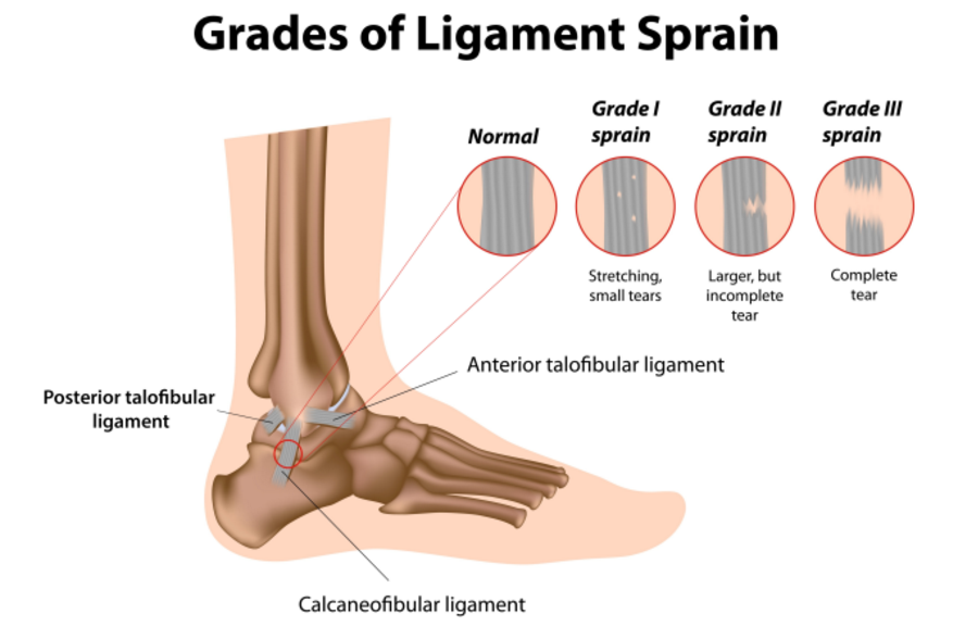 sprained-ankle-physio-sydney-cbd.png
