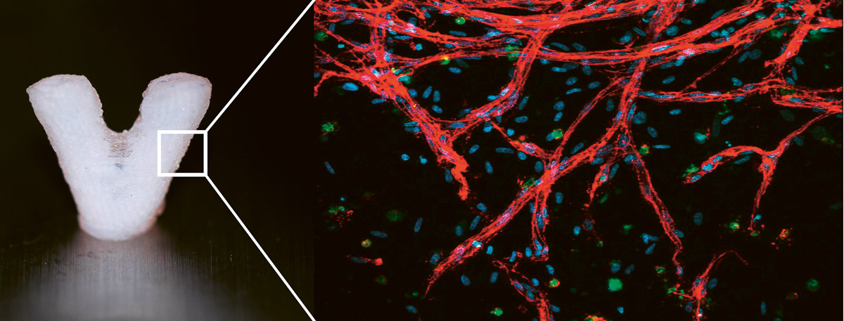 Darstellung einer 3D-biogedruckten und vaskularisierten (also mit einer Art künstlichen Blutgefäßen durchzogenen) Hydrogelstruktur. So könnte ein Teil eines Organs aussehen.