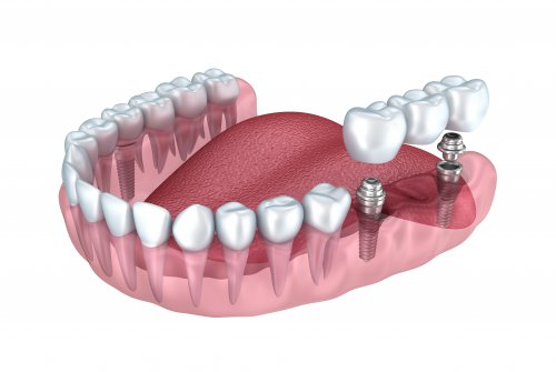 Dental Bridge vs. Dental Implants — Which Is Right for You?.jpg