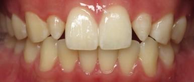 Cerec Dentistry Before.jpg