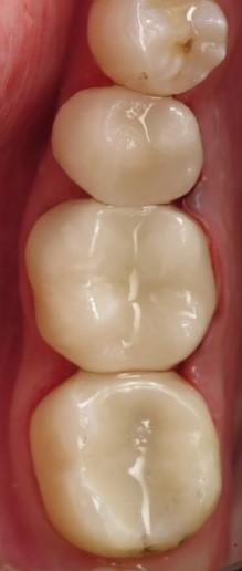 Dental Fillings 2.jpg
