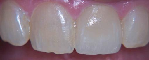 After Cerec Tooth Repair.jpg