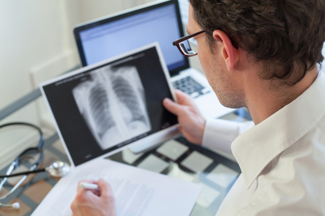 Global Pulmonology Software Industry 2020 – The Daily Chronicle