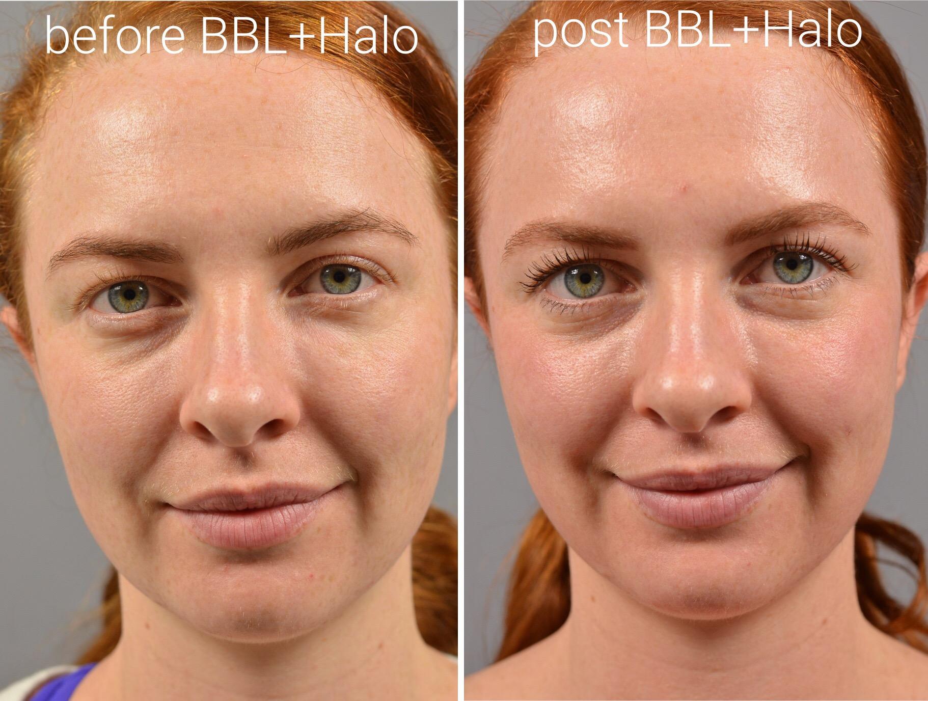 halo-laser-before-after.jpg