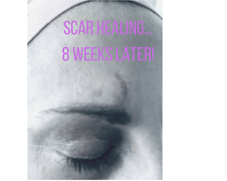 Facial Scar - 8 weeks and 3 days after fainting and hitting my head. #healingfast