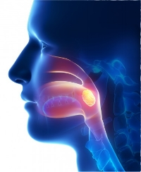Dysphagia picture.jpg