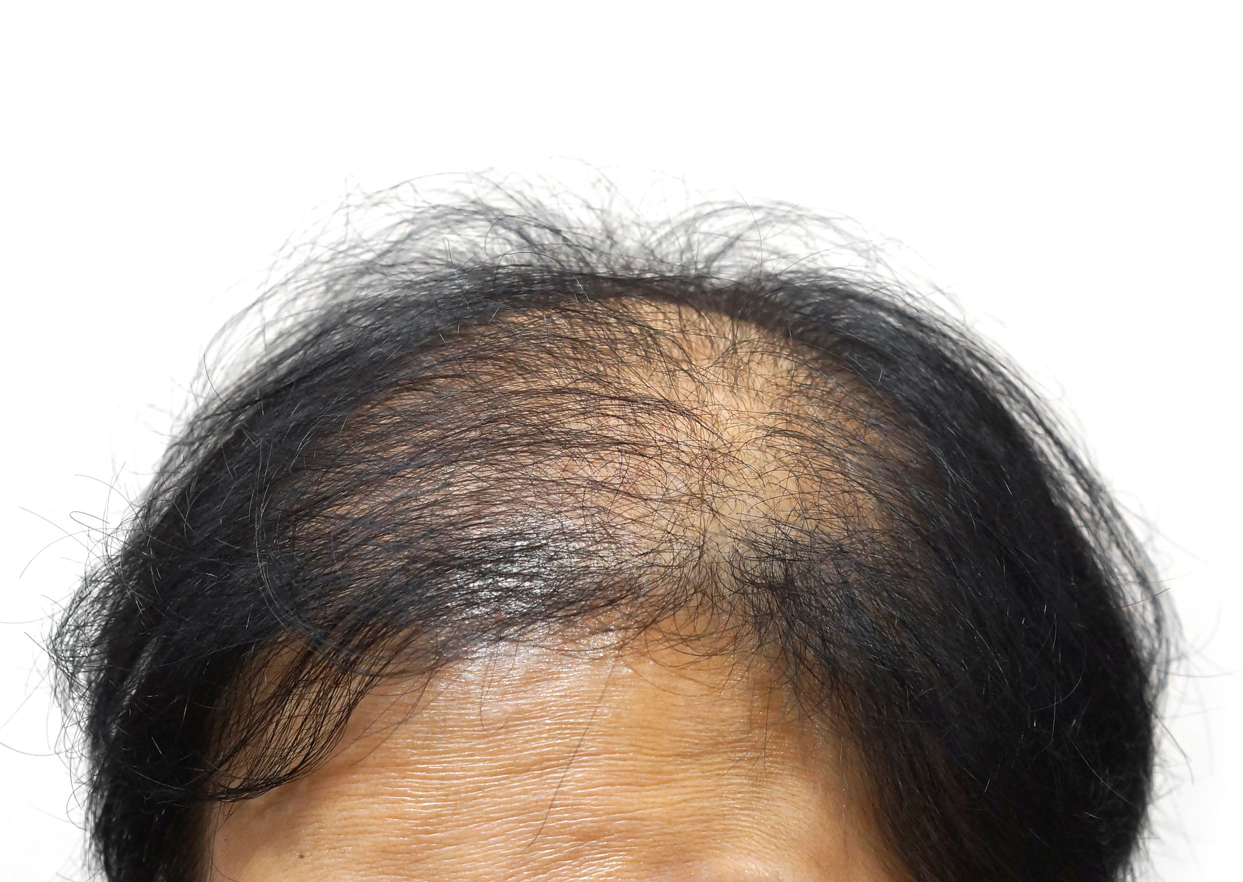 For men and women: Learn about effective medical management of pattern hair loss.