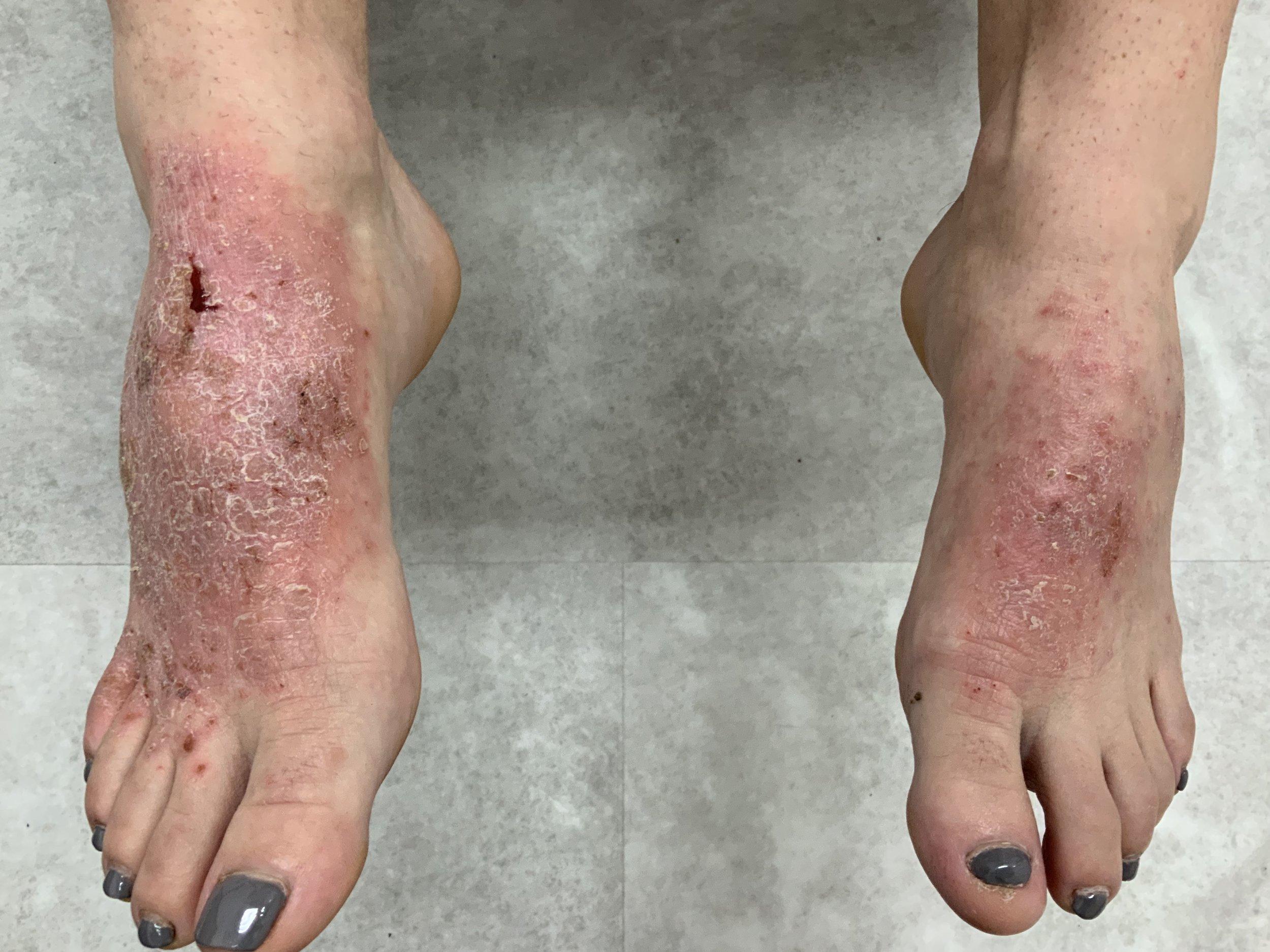 Feet Before.jpeg