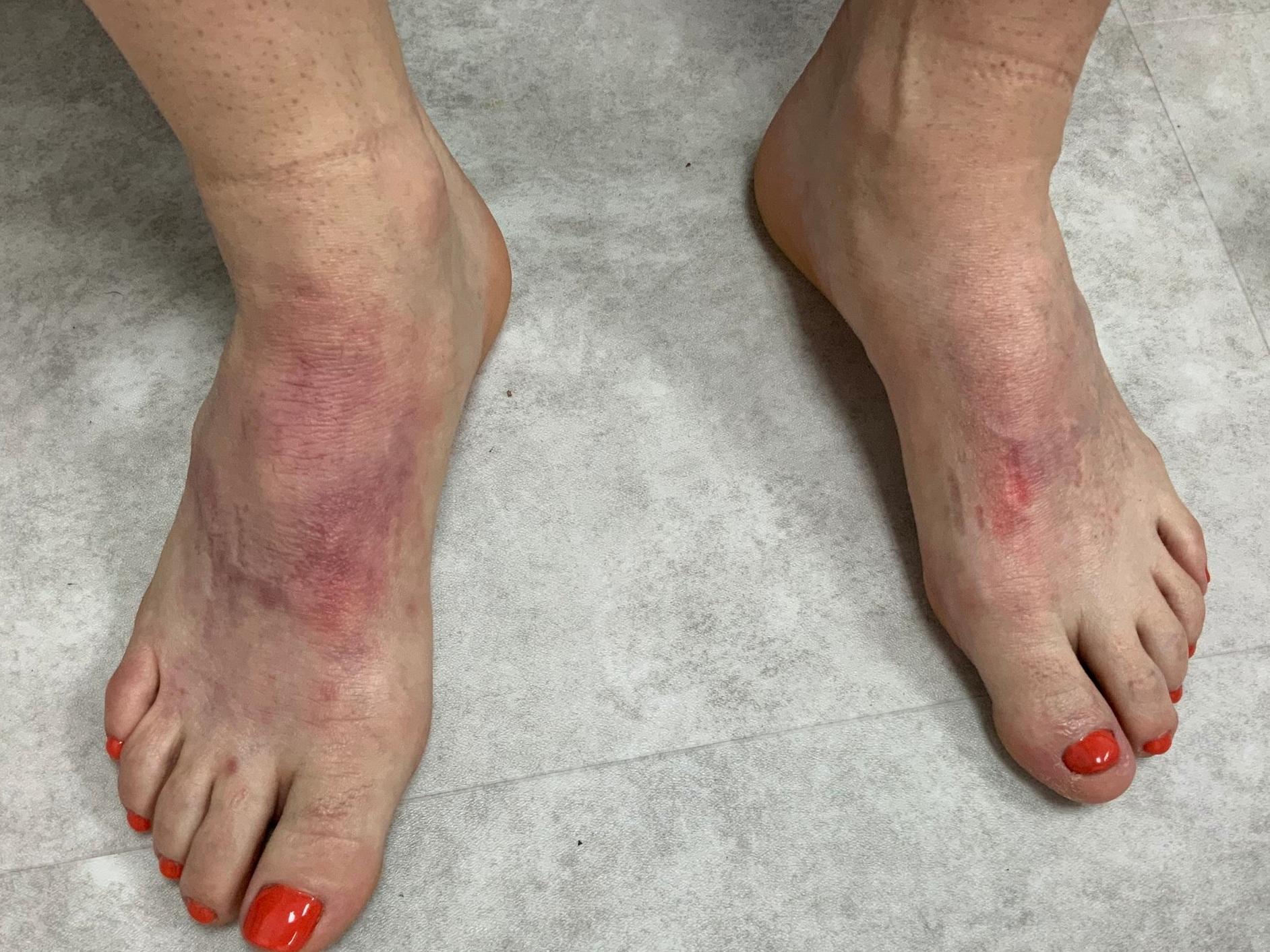 Feet After.jpeg
