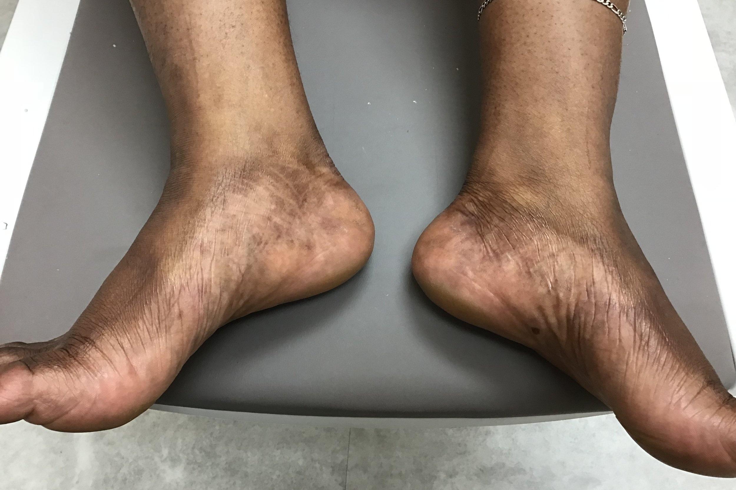 Feet - Heather - After.jpeg