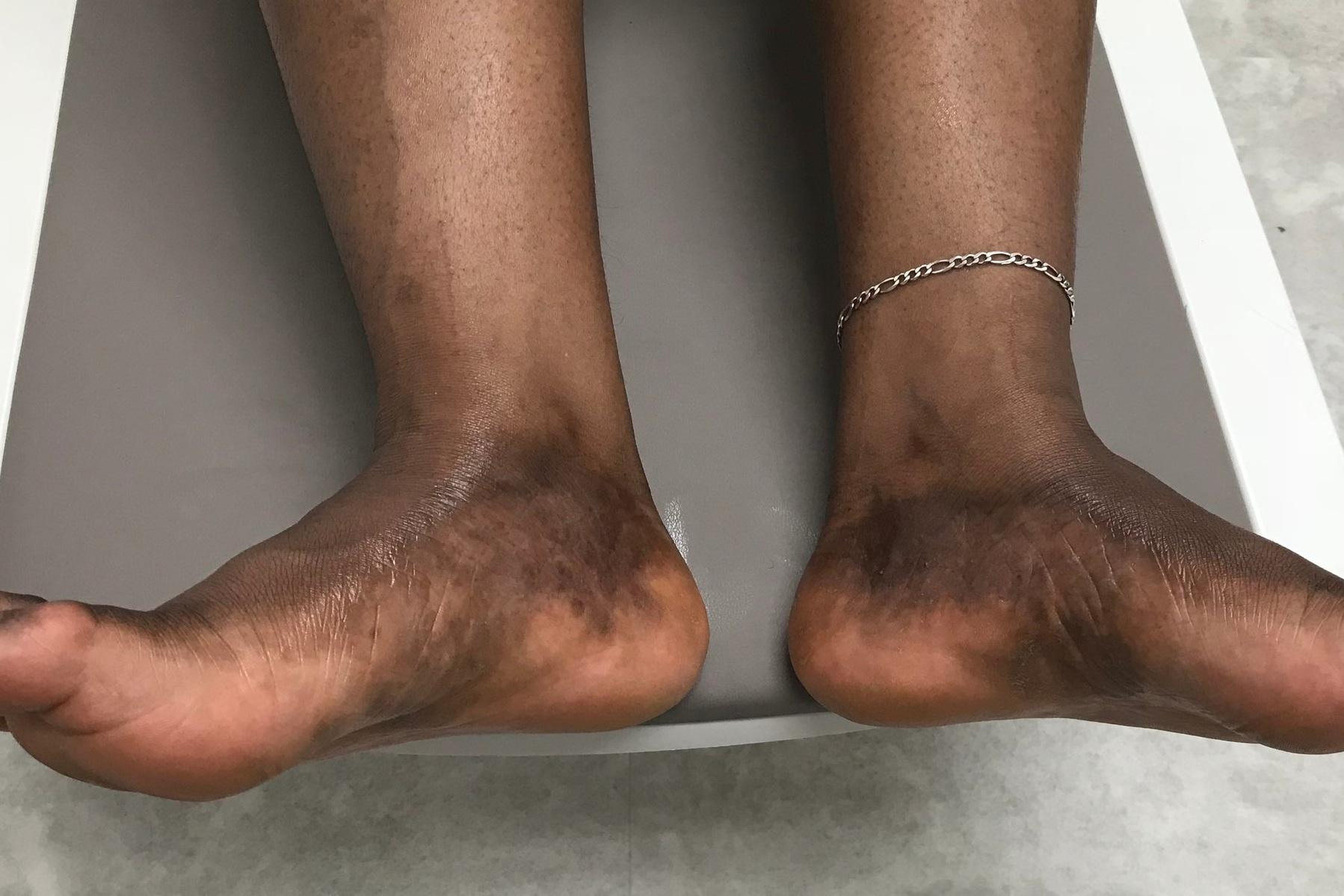 Feet - Heather - Before.jpeg