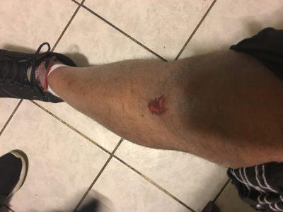 leg injury.jpg