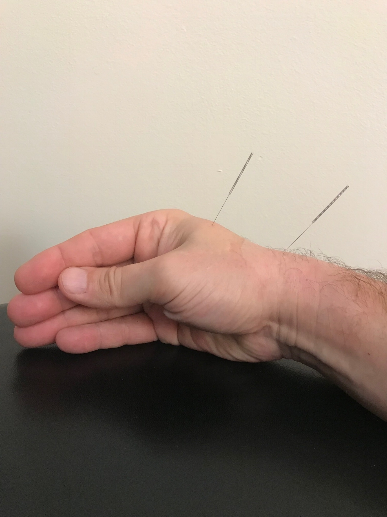 Custom Treatments to fit your needs - Our Acupuncturist will treat you with a variety of options including Acupuncture, Acupressure, Cupping and Electro Stimulation.Learn more ➝