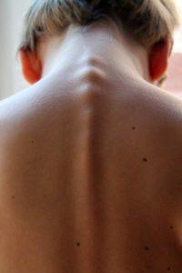 spinal-column-246273