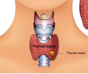 thyroid-and-parathyroid-1024x573
