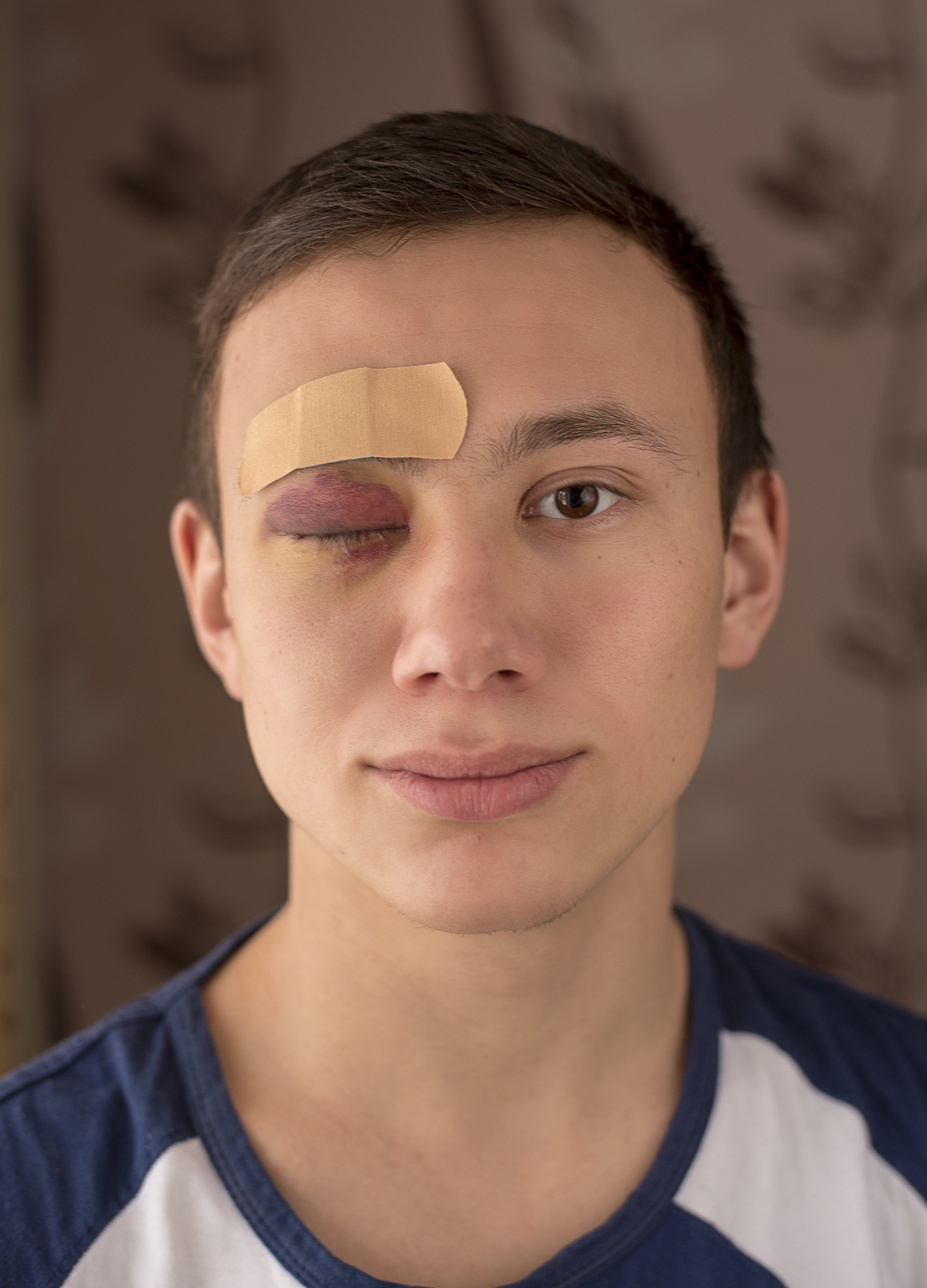 Head shot man with black eye and plaster