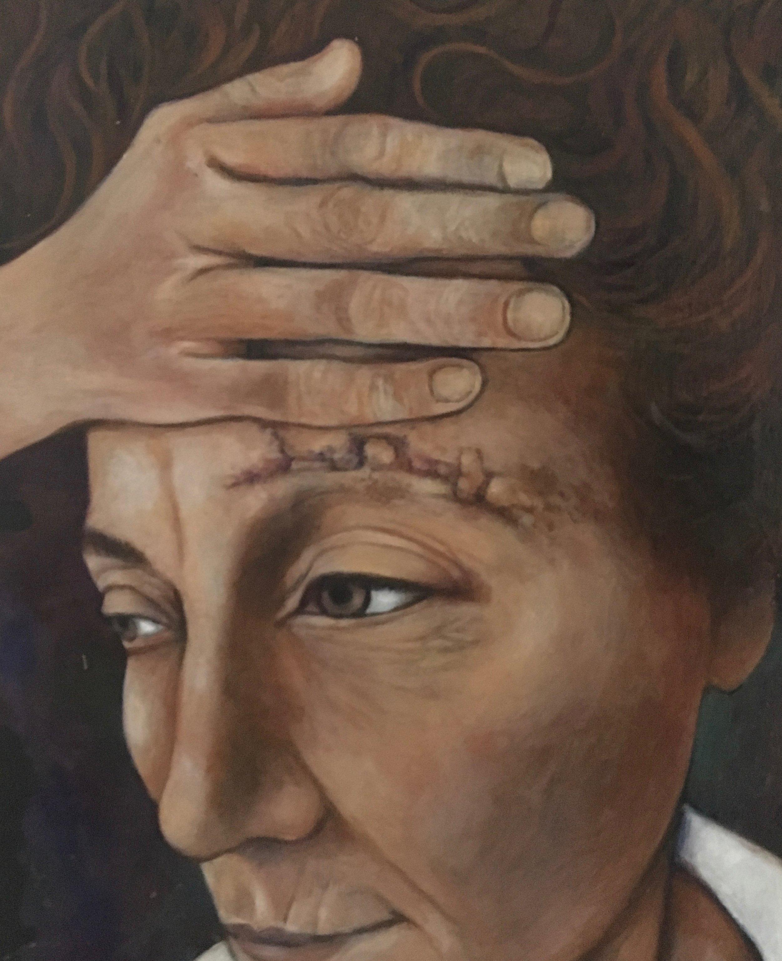 Self Portrait After Brain Tumor