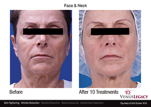Venus Legacy™ Skin Tightening Treatment - Edmonton - New Image Cosmetic - Non Surgical