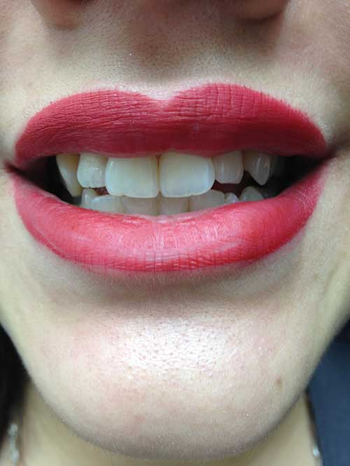 Teeth Whitening  - Edmonton - New Image Cosmetic - Luxury Medical Spa