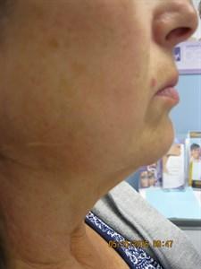 Belkyra Edmonton - Double Chin Treatment - Non Surgical
