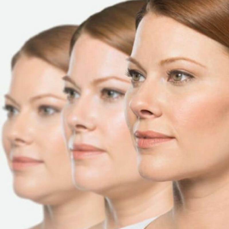 Edmonton Belkyra Double Chin Treatment - New Image Cosmetic