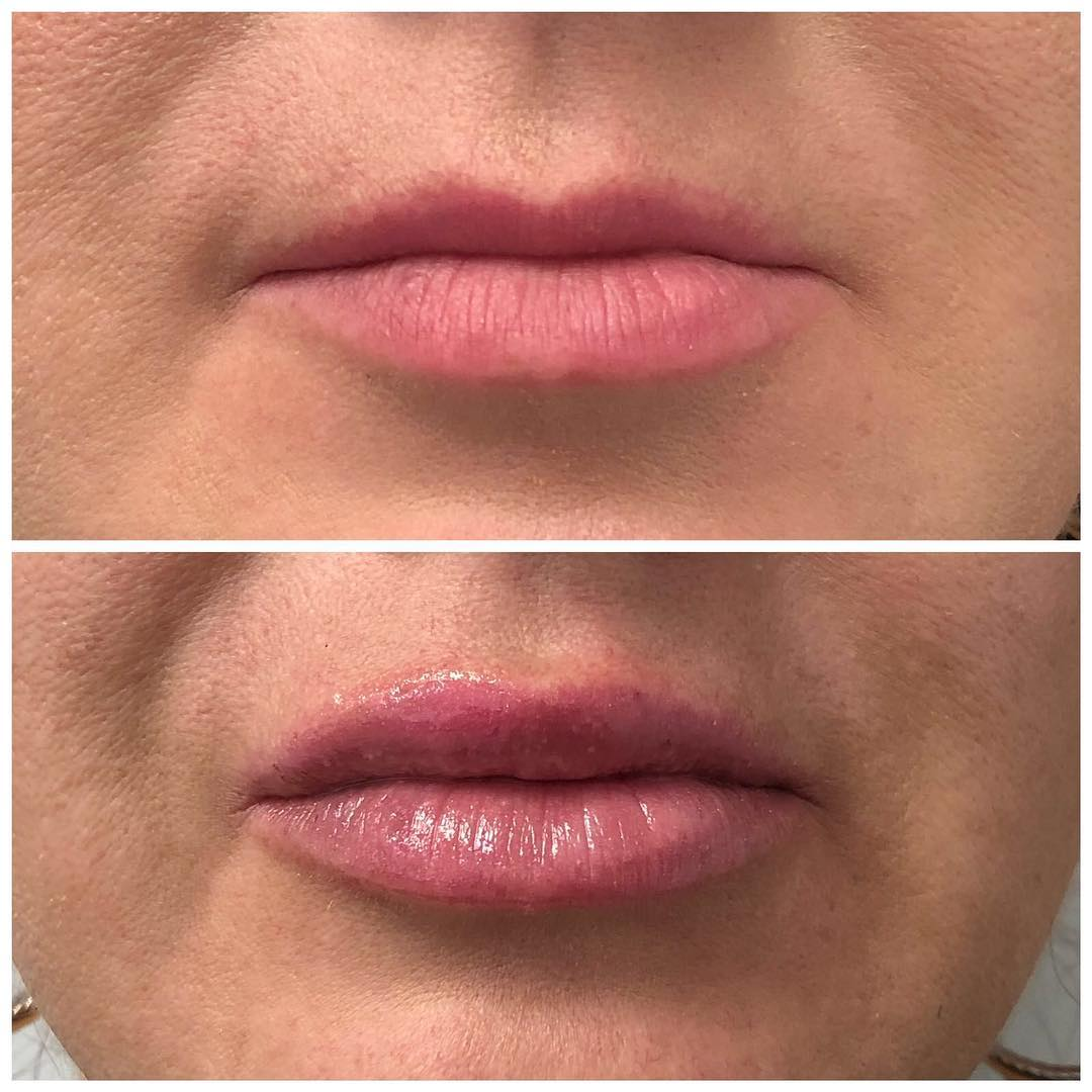 Lip Injections - Edmonton - Filler - New Image Cosmetic - Dr. Poon - Lip Enhancement - Juvederm - Syringe - Lip Filler
