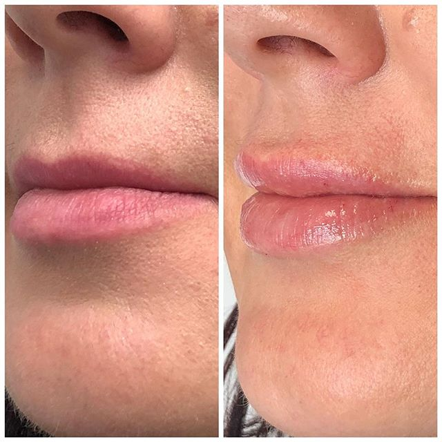 Edmonton - New Image Cosmetic - Dr. Poon - Lip Injections - Botox - CoolSculpting - Fillers - Laser - Spa