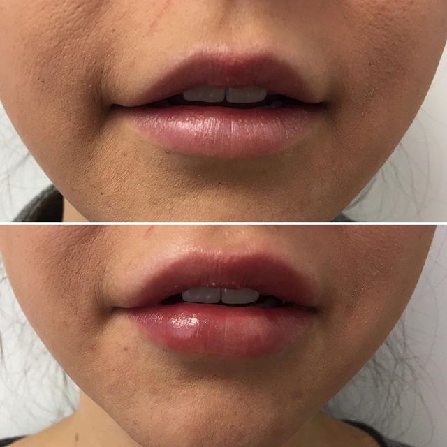 Lip Injections - Lip Filler - Juvederm - Cheek - Wrinkles - Botox - Fine Lines - Edmonton - New Image Cosmetic - Luxury Medical Spa