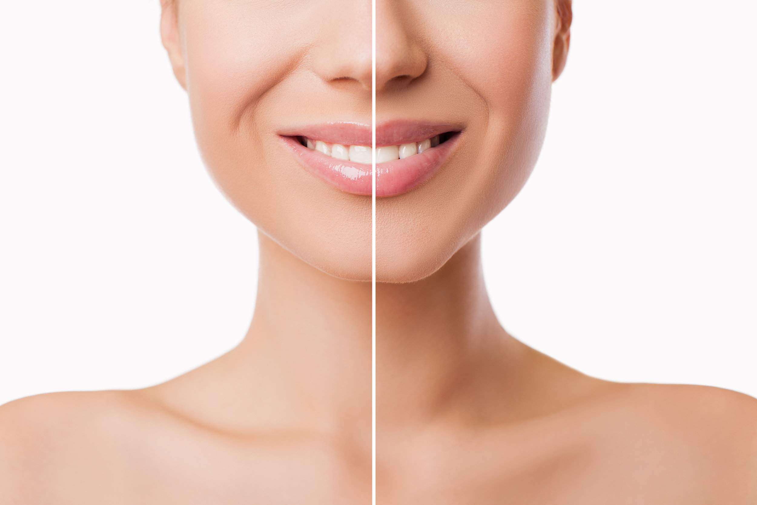 Edmonton Cosmetic Injectables BOTOX® / JUVEDERM®, Lip Injections, Filler, New Image Cosmetic