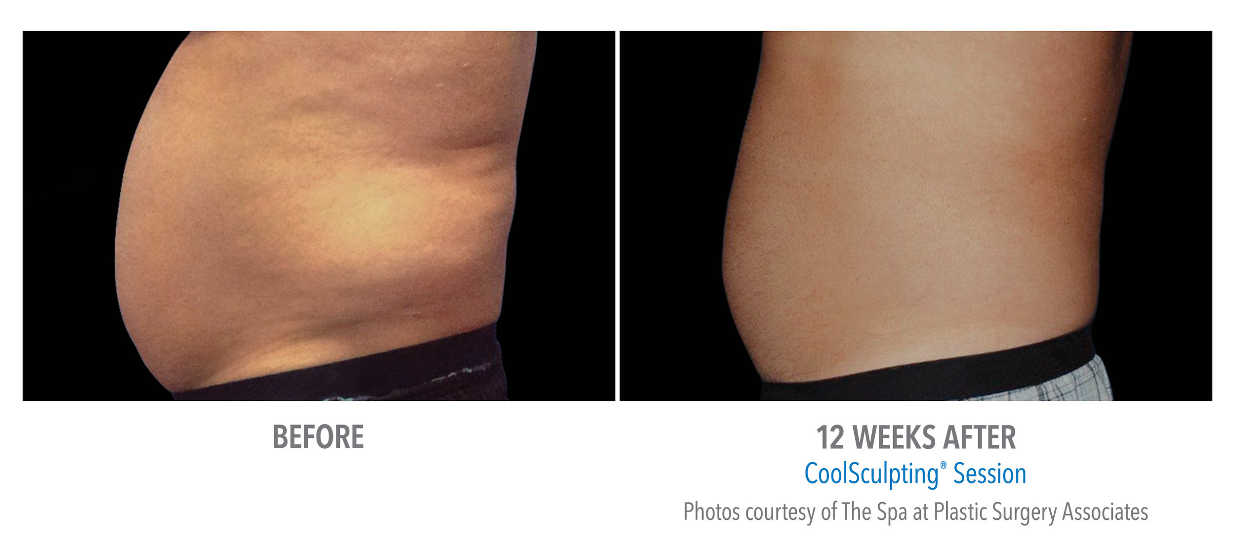 CoolSculpting Non-Surgical Liposuction - Fat Reduction - Edmonton - New Image Cosmetic - Luxury Medical Spa