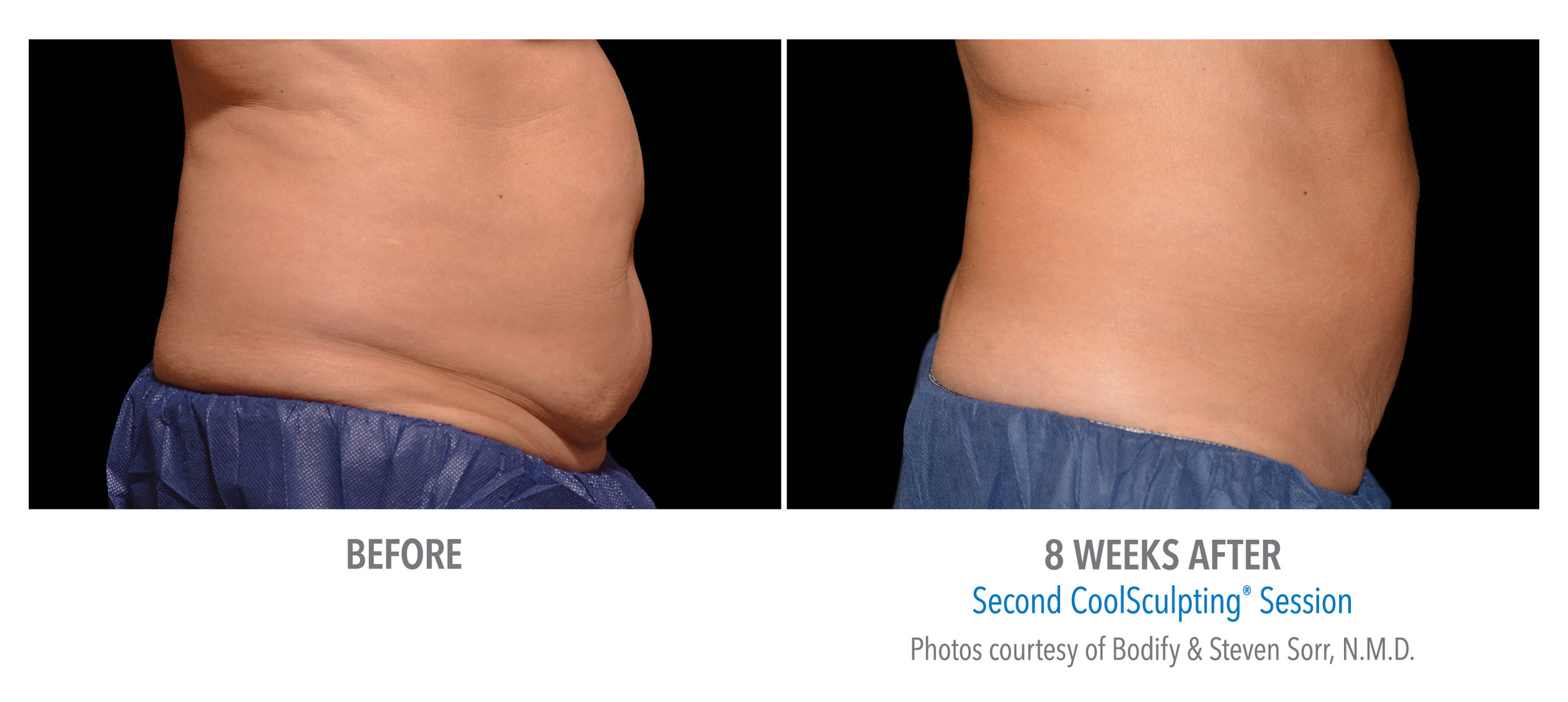 CoolSculpting - Edmonton - New Image Cosmetic - Non Surgical Liposuction