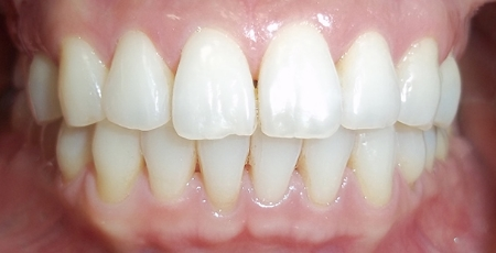 Beautiful results with Invisalign® transparent removable braces!