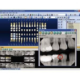 Our digital radiograph system exposes the patient to a small fraction of radiation compared to traditional x-rays.