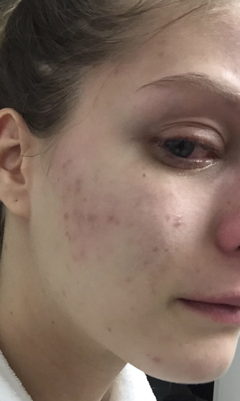 Getting To The Root Cause Of Acne Klarskin