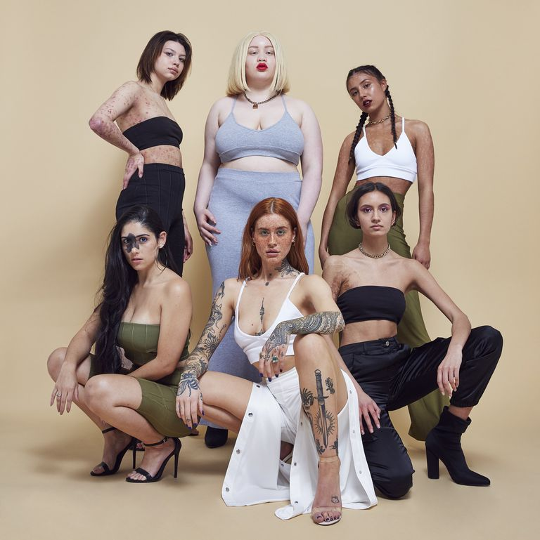 #InYourOwnSkin by Missguided - Missguided is launching a new campaign, #InYourOwnSkin, which celebrates what the fashion industry deems as 'flaws' or imperfections. The initiative features six women who have albinism, burn marks, skin conditions like Epidermolysis Bullosa (EB) and psoriasis, freckles, tattoos, and birthmarks. The women make a powerful statement about perfection, self-love, and empowerment.