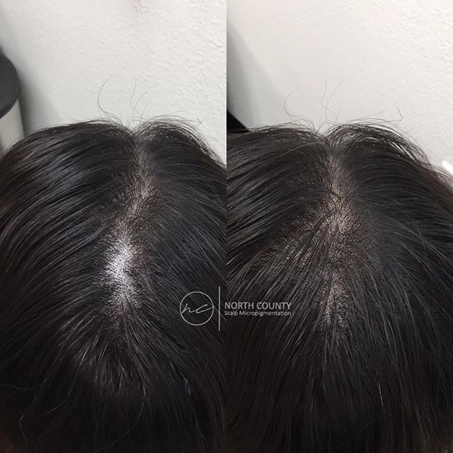✨Scalp Micropigmentation doesn't have to be your whole head, we can give you a sprinkle of color in small spots too!✨ . Immediate results, no downtime! Consultations are always free! All links in bio👆🏻
