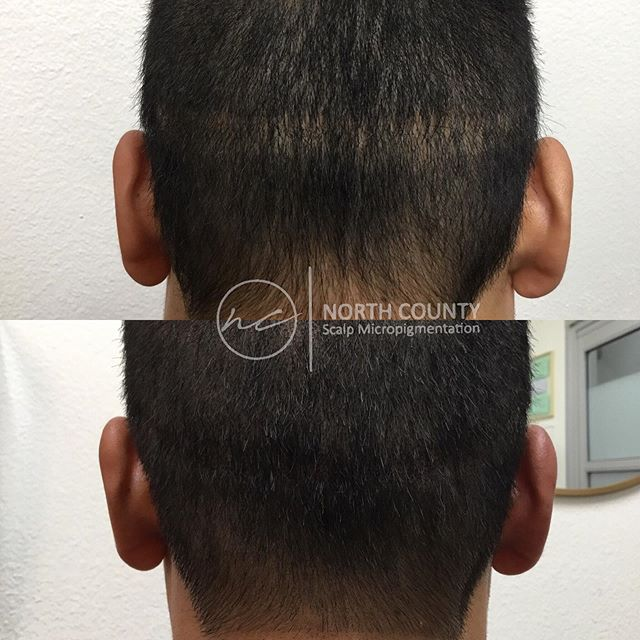 ✨Hair transplants leave a scar, let us help you camouflage them✨ Scalp Micropigmentation is  a great way to cover up any unwanted scars. Minimal cost, no downtime, immediate results! All links in bio👆🏻