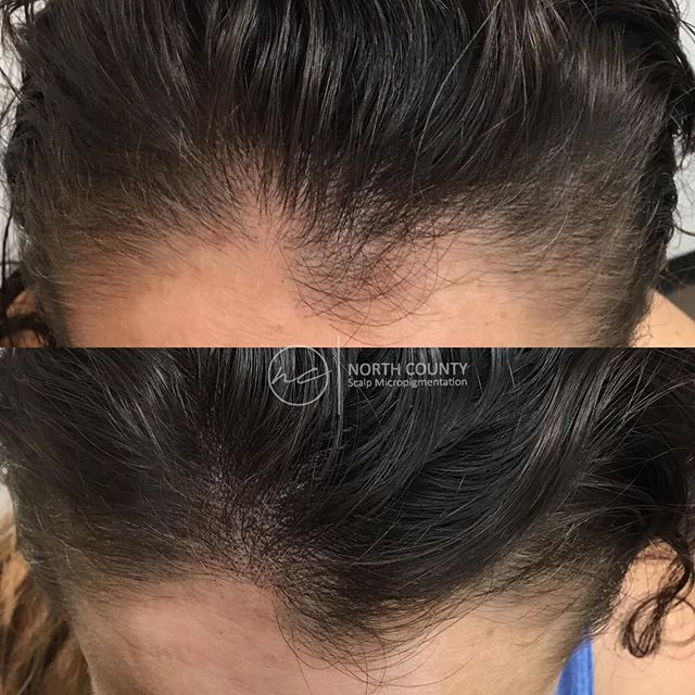 ✨Sometimes just a simple fill around the hairline is all you need✨ Consultations for scalp micropigmentation are the best way to get all your questions answered. All links in bio☝🏻